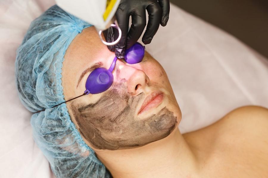 Carbon Peeling: Η θεραπεία που θα λειάνει το δέρμα σας